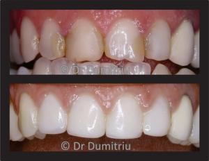Coroane dentare ceramice - Dr. Dumitriu Dental Clinic