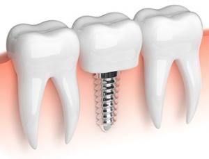 Dr. Dumitriu - Implantologie