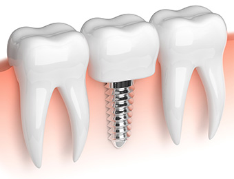 Implantologie Dr. Dumitriu