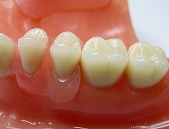 Protetica dentara Dr. Dumitriu