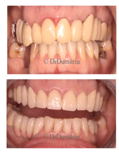 Punti dentare - Dr. Dumitriu Dental Clinic